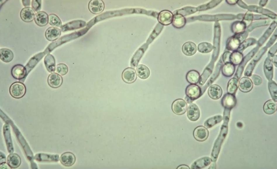 Молочный гриб влагалище