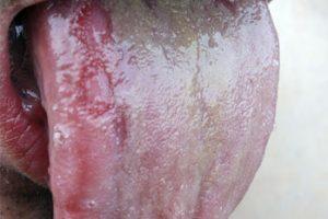 dealing with oral thrush symptoms, Skeleton