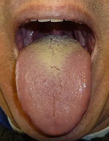 thrush-tongue