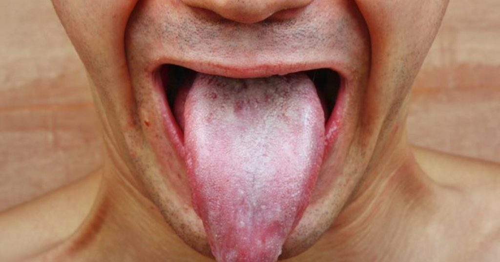 oral-thrush-in-adults