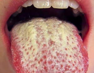 white spots and patches in the mouth