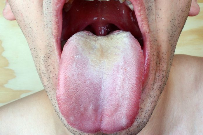Mouth adults thrush for Treatment in
